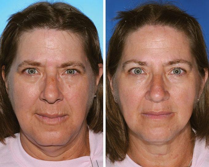 Женщина слева на 17 лет дольше увлекалась курением, чем её сестра справа.