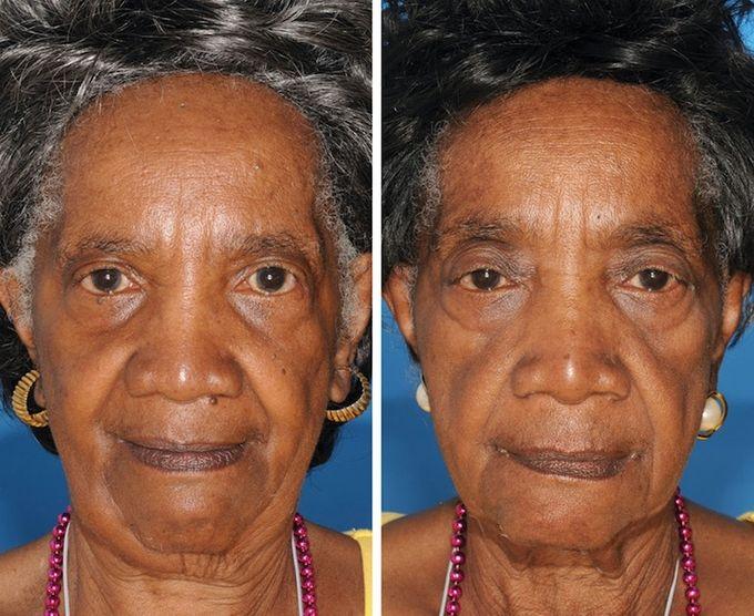 Женщина слева не курит, тогда, как её сестра занимается этим на протяжении 29 лет.