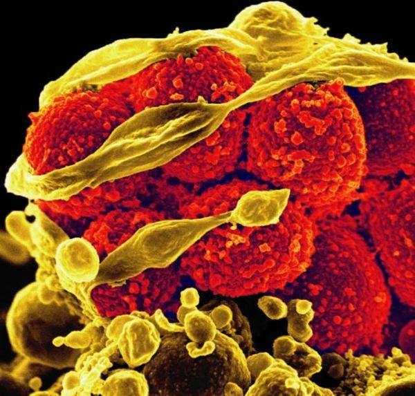Менингит также может вызывать эта бактерия — Staphylococcus aureus (на снимке — жёлтого цвета).