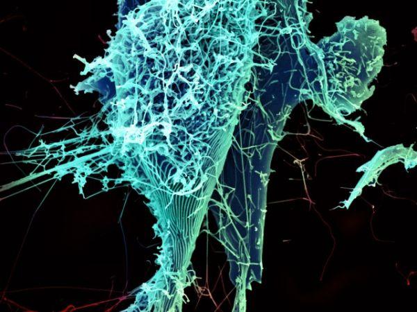 Вирус Эбола, вызывающий лихорадку. При заболевании характерны внезапное повышение температуры, общая слабость, мышечные и головные боли, сопровождающиеся рвотой, сыпью, нарушением функции печени и почек. Иногда вызывает внутренние и внешние кровотечения.
