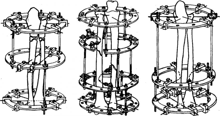 Схемы компоновки аппарата