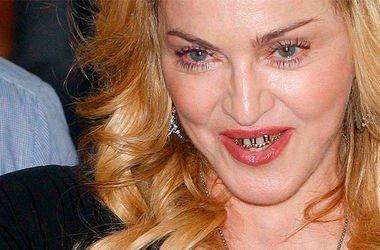 Мадонна шокировала своими зубами. Фото: vipnews.com.ua