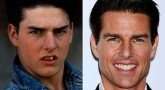 До и после изменения зубов, Фото: кадр из фильма/Getty