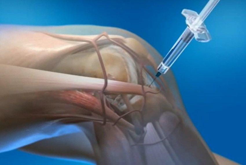инъекции в коленный сустав фото