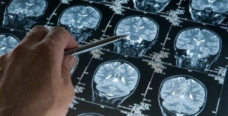 Нейробиолог рассказал, чем полезно голодание