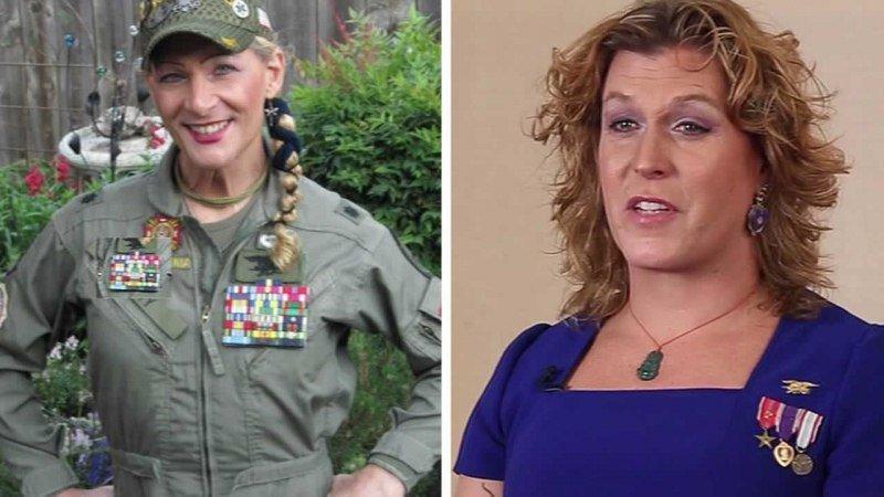 Пентагон впервый раз оплатит военнослужащему операцию посмене пола